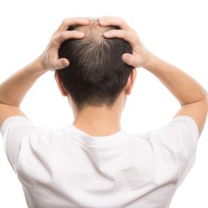 ニット帽 禿げる 嘘 理由 薄毛 対策